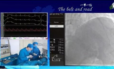 中国联通完成5G直播心脏介入手术